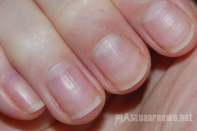 指甲上有竖纹白点凹凸是怎么回事?解密你的健康状况